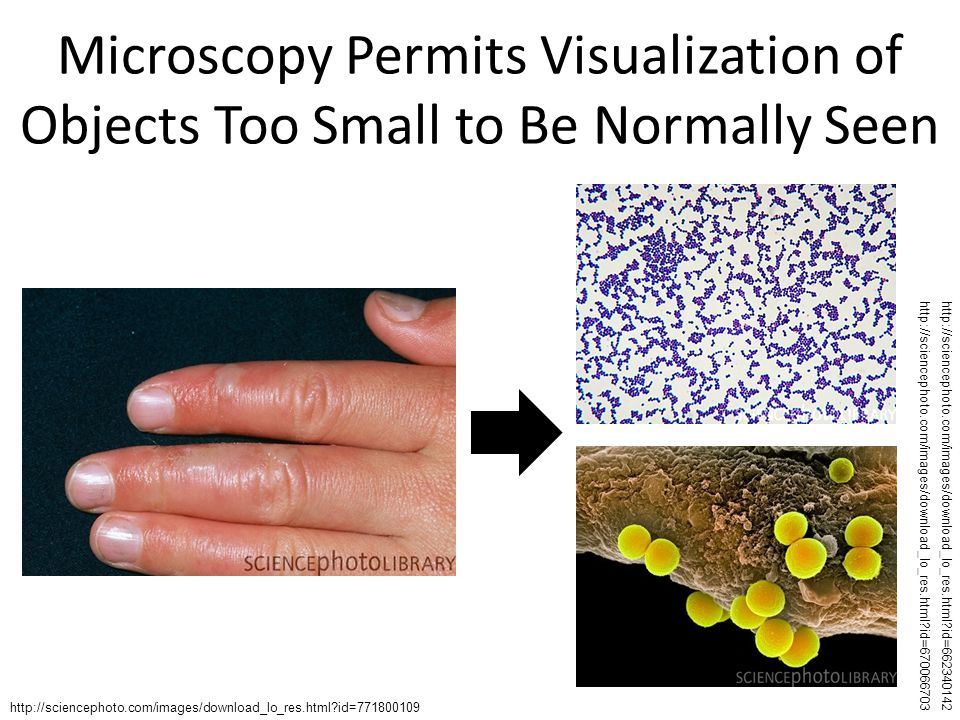 Microscopy Permits Visualization of Objects Too Small to Be Normally Seen