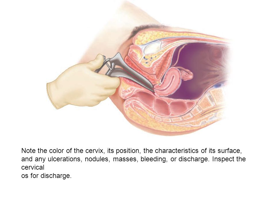 Note the color of the cervix, its position, the characteristics of its surface,