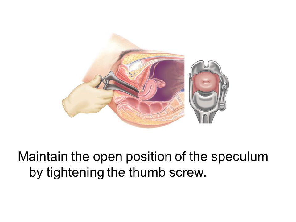 Maintain the open position of the speculum by tightening the thumb screw.