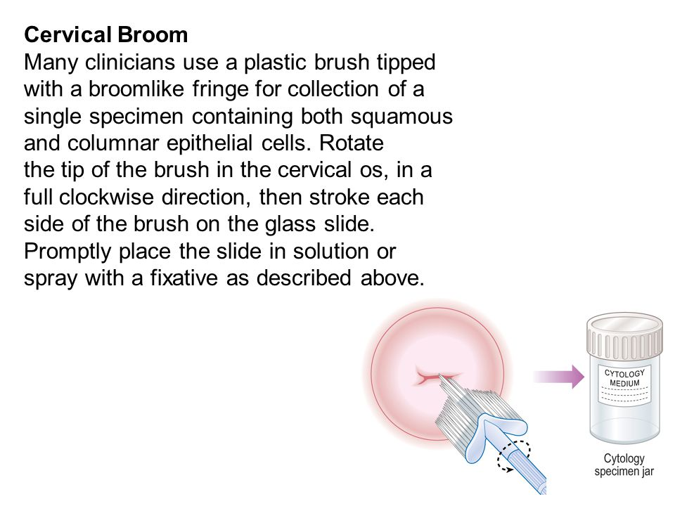 Cervical Broom Many clinicians use a plastic brush tipped. with a broomlike fringe for collection of a.