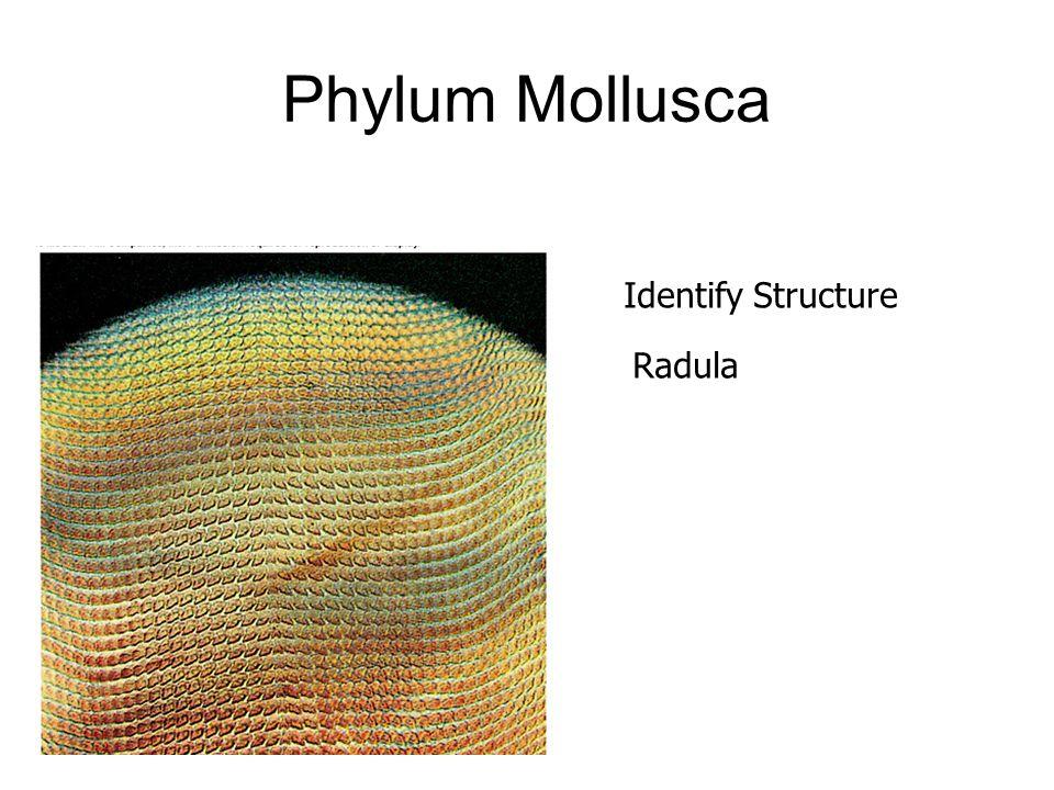 Phylum Mollusca Identify Structure Radula