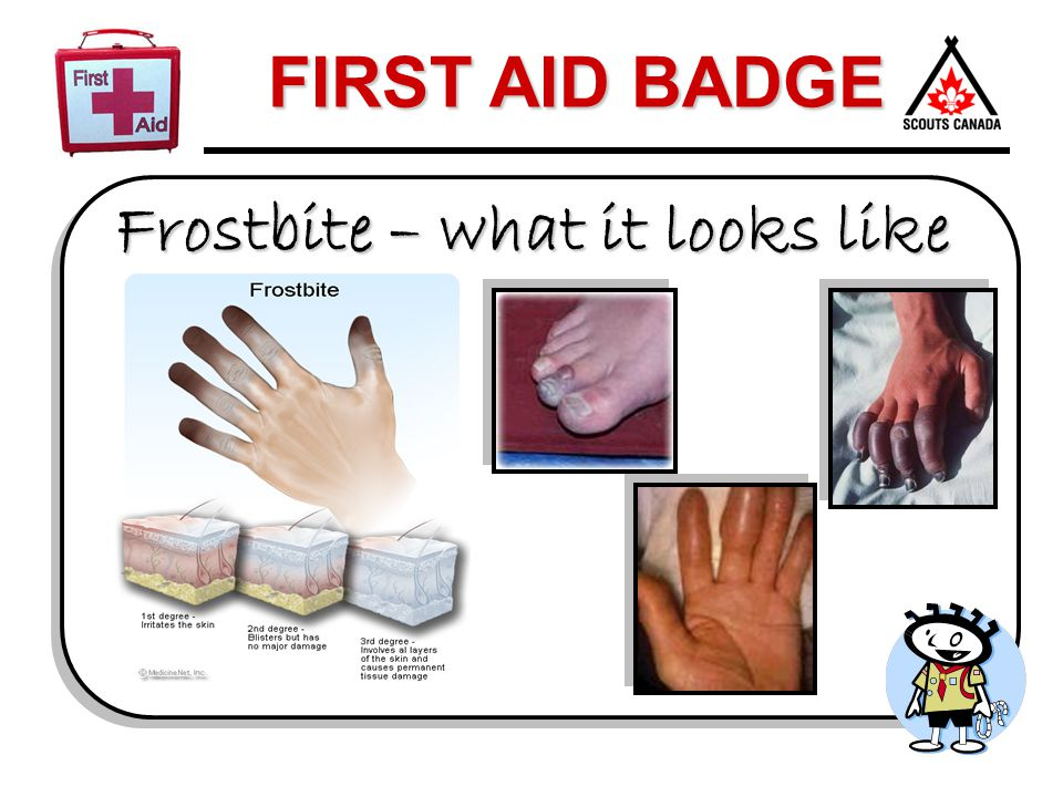 Frostbite – what it looks like
