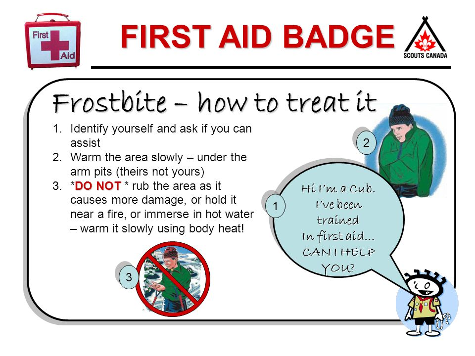 Frostbite – how to treat it