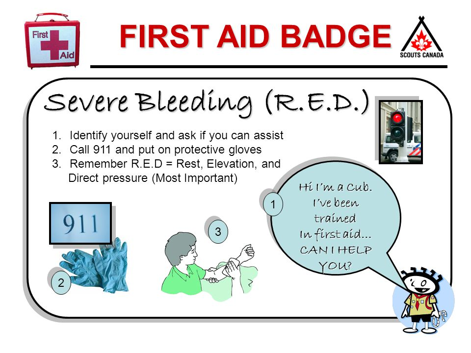 Severe Bleeding (R.E.D.) Hi I'm a Cub. I've been trained In first aid…