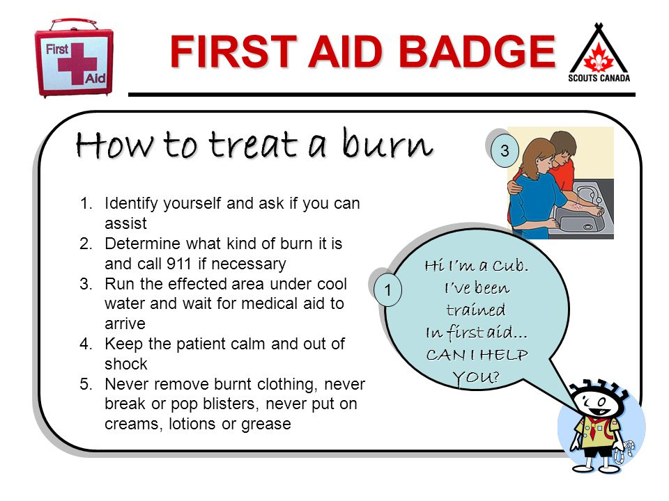 How to treat a burn Hi I'm a Cub. I've been trained In first aid…