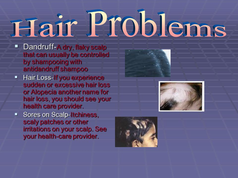 Hair Problems Dandruff-A dry, flaky scalp that can usually be controlled by shampooing with antidandruff shampoo.