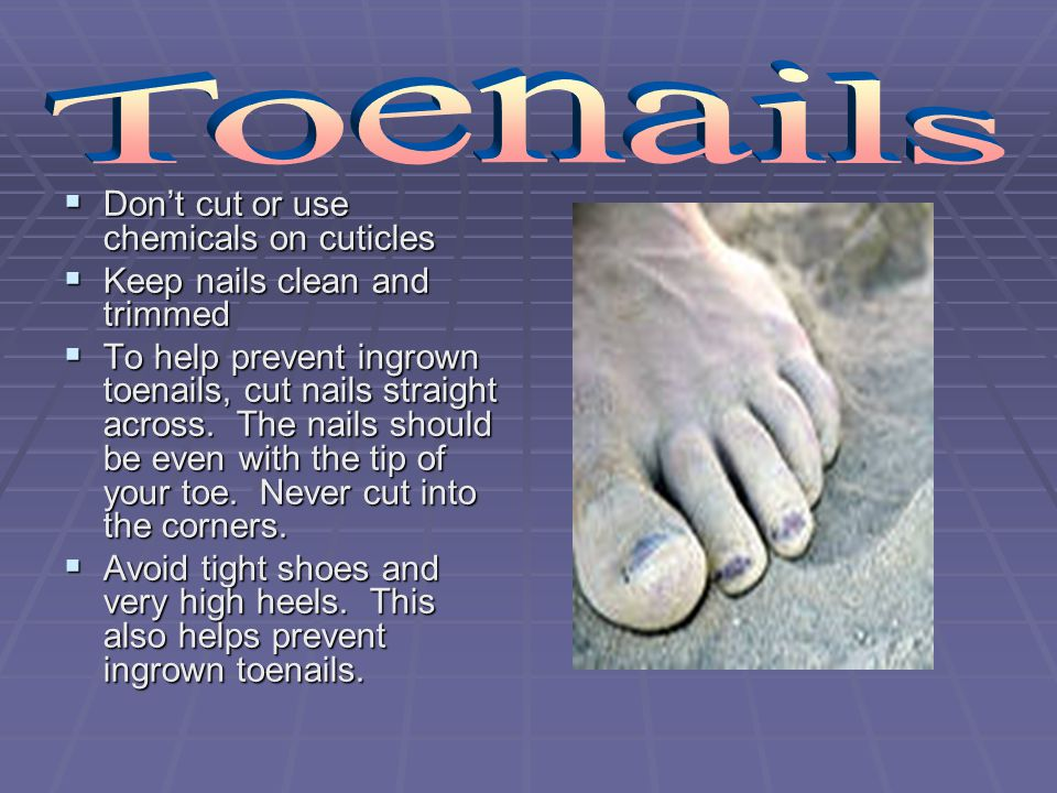 Toenails Don't cut or use chemicals on cuticles