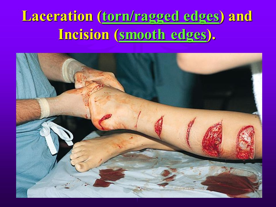 Laceration (torn/ragged edges) and Incision (smooth edges).