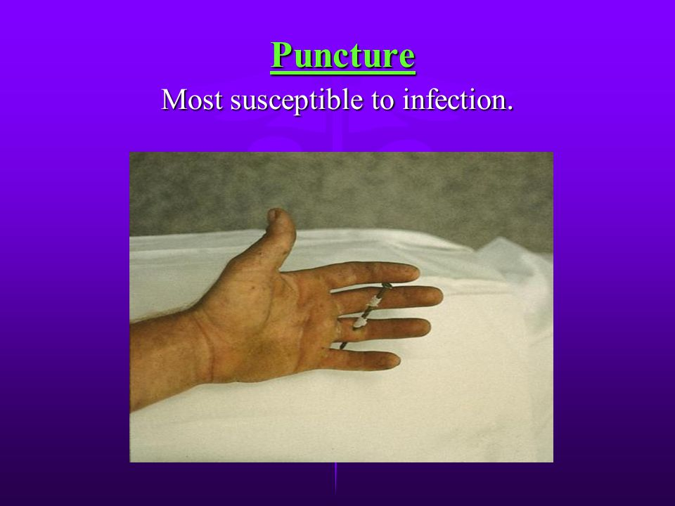Puncture Most susceptible to infection.