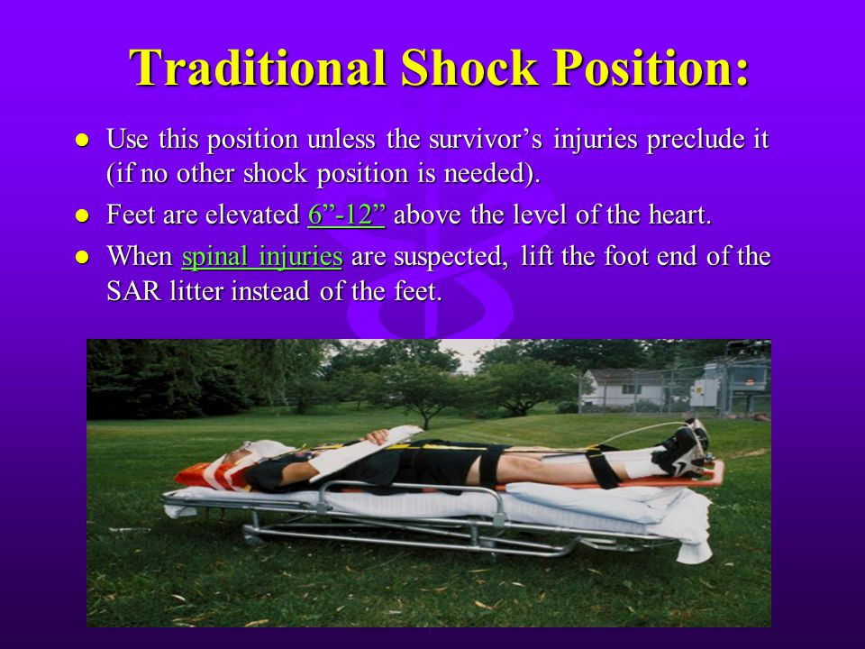 Traditional Shock Position: