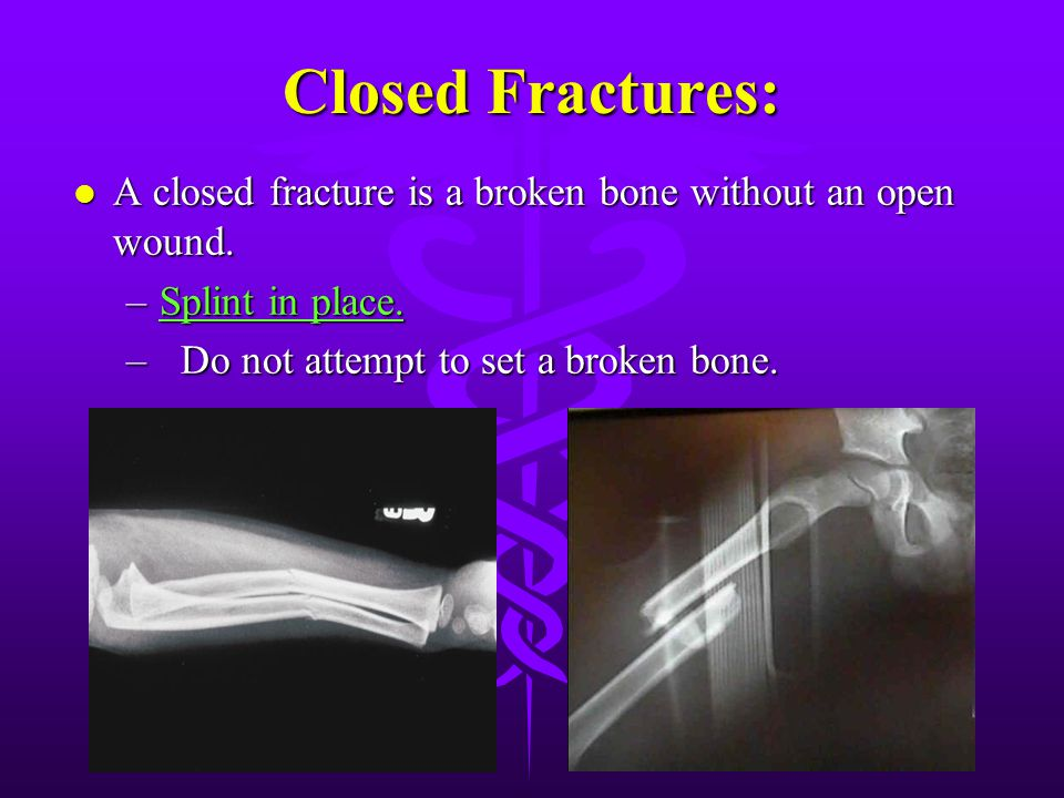Closed Fractures: A closed fracture is a broken bone without an open wound.