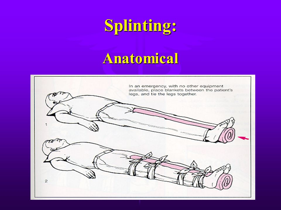 Splinting: Anatomical