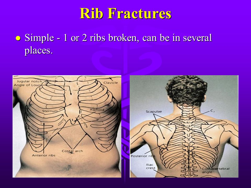 Rib Fractures Simple - 1 or 2 ribs broken, can be in several places.