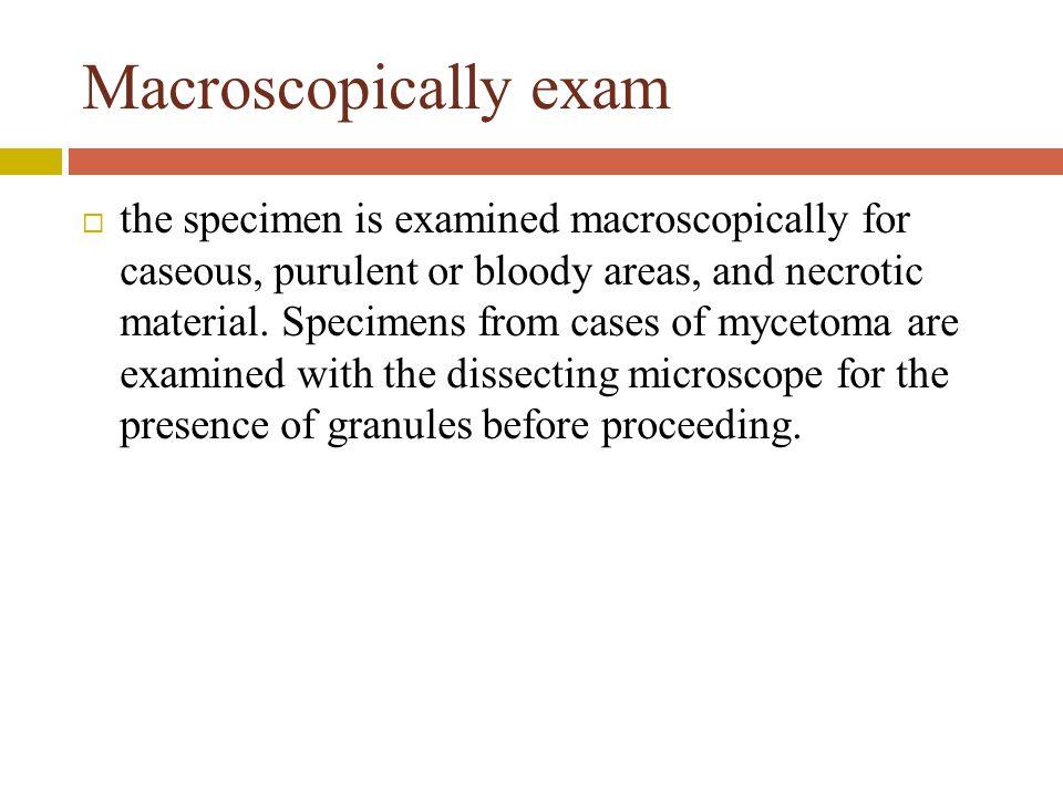 Macroscopically exam