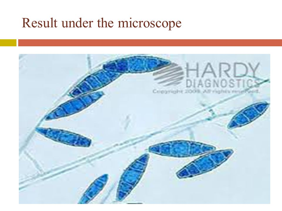Result under the microscope