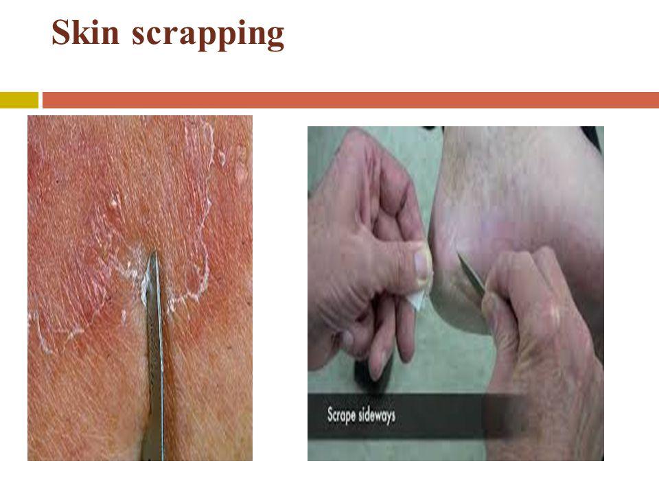 Skin scrapping