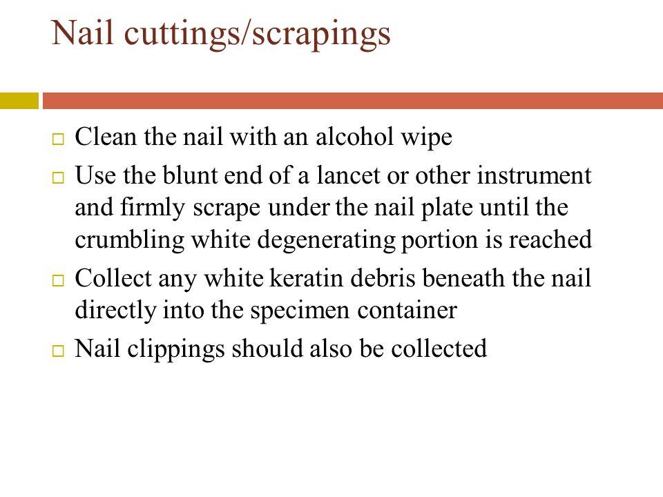 Nail cuttings/scrapings