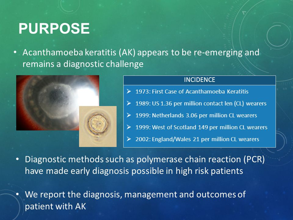 Purpose Acanthamoeba keratitis (AK) appears to be re-emerging and remains a diagnostic challenge. INCIDENCE.