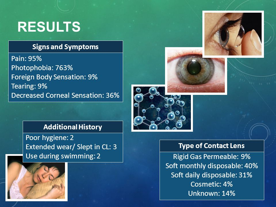 Results Signs and Symptoms Pain: 95% Photophobia: 763%