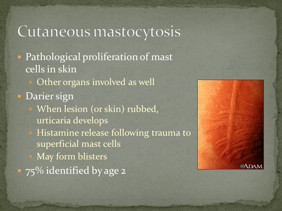 Cutaneous mastocytosis
