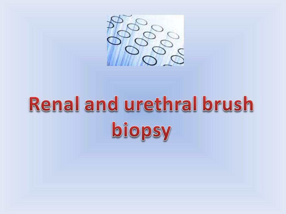 Renal and urethral brush biopsy