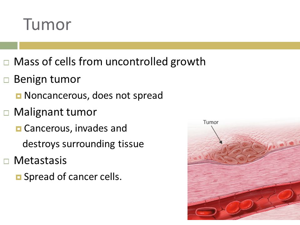 Tumor Mass of cells from uncontrolled growth Benign tumor