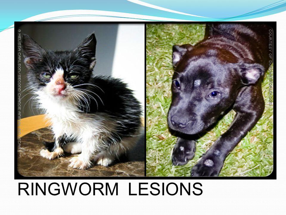 Ringworm ( photo credit—images.rxlist.com )