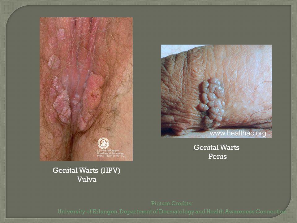 Genital Warts Penis Genital Warts (HPV) Vulva Picture Credits: