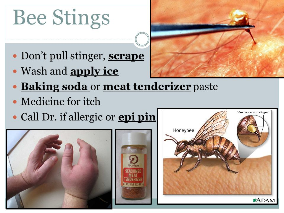 Bee Stings Don't pull stinger, scrape Wash and apply ice