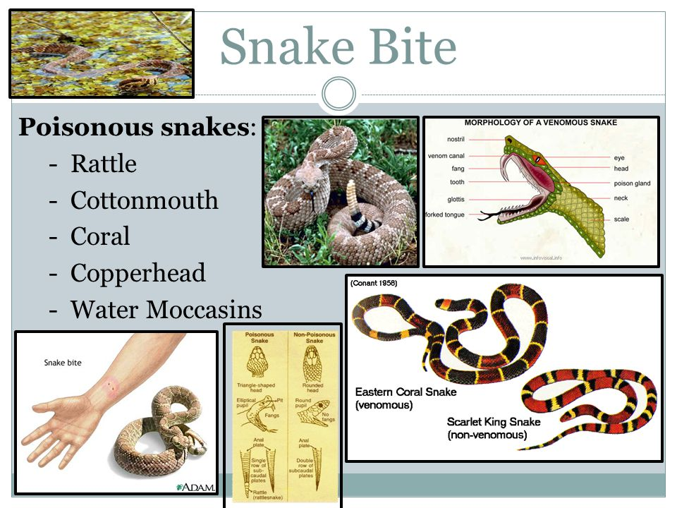 Snake Bite Poisonous snakes: - Rattle - Cottonmouth - Coral - Copperhead - Water Moccasins