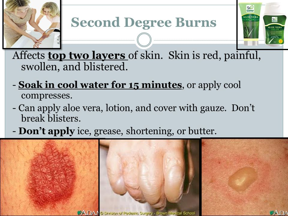 Second Degree Burns Affects top two layers of skin. Skin is red, painful, swollen, and blistered.