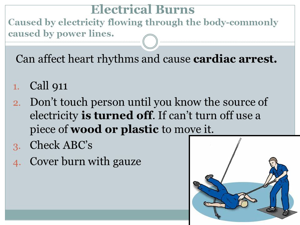 Electrical Burns Caused by electricity flowing through the body-commonly caused by power lines.