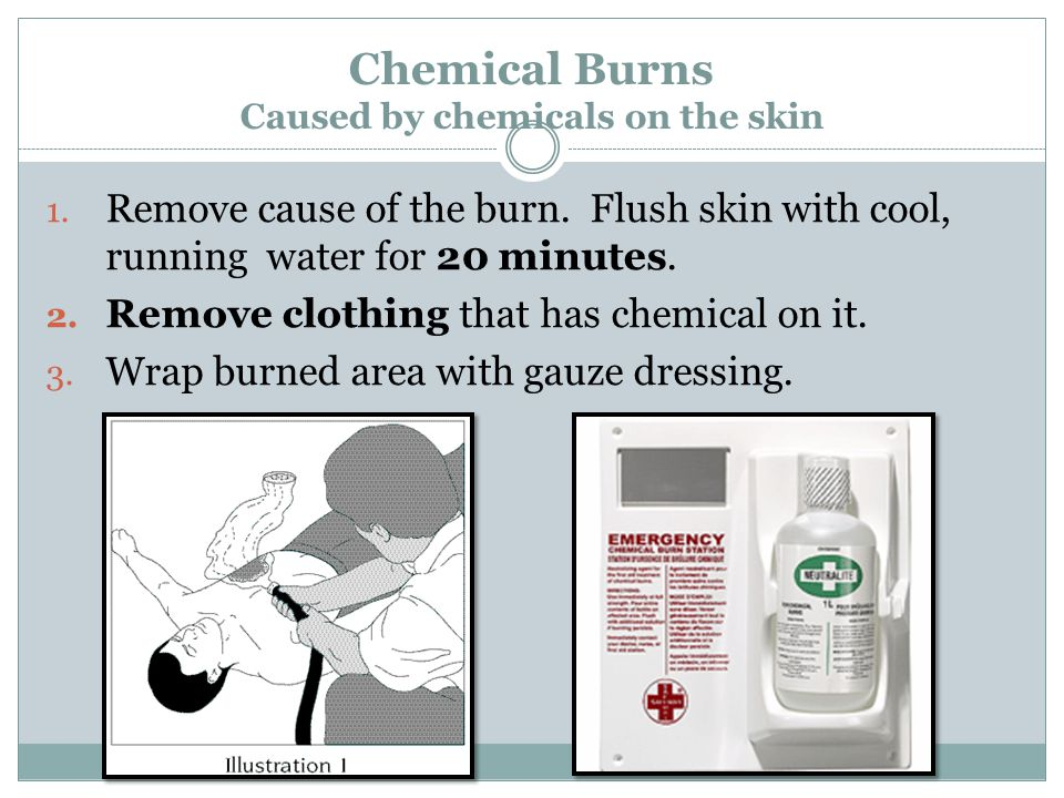 Chemical Burns Caused by chemicals on the skin