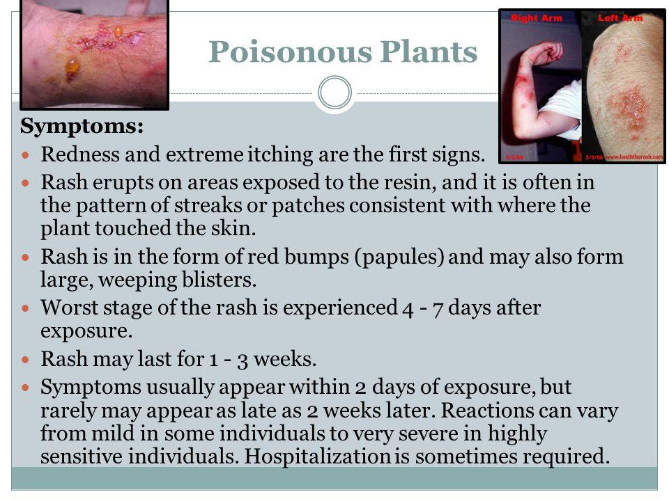 Poisonous Plants Symptoms: