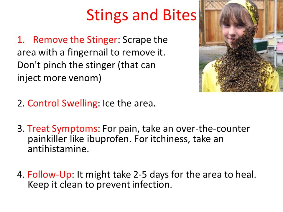 Stings and Bites Remove the Stinger: Scrape the