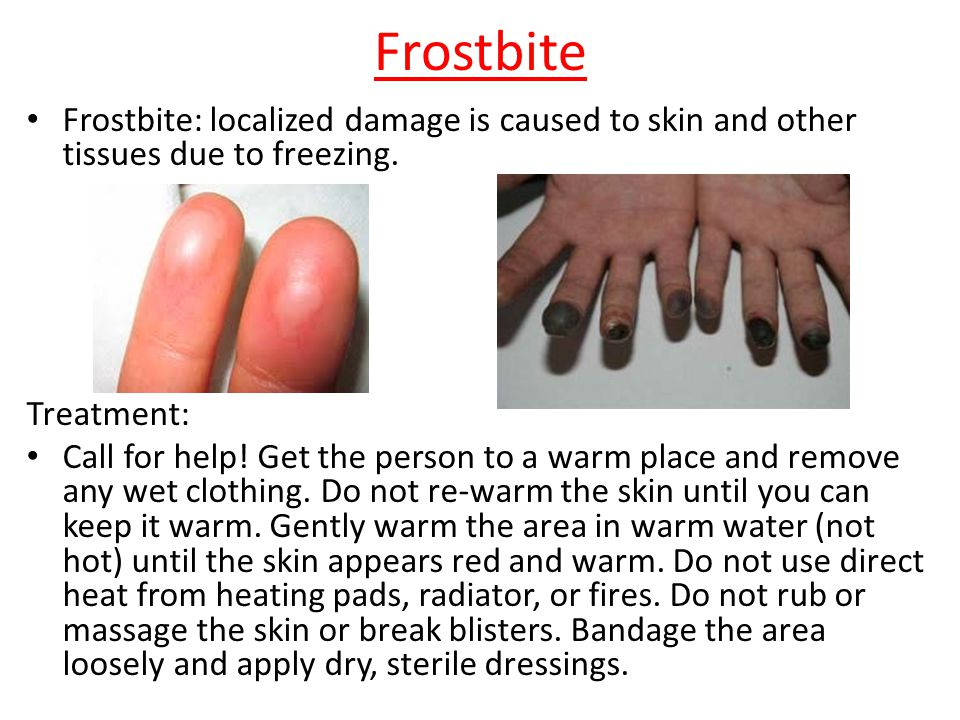 Frostbite Frostbite: localized damage is caused to skin and other tissues due to freezing. Treatment: