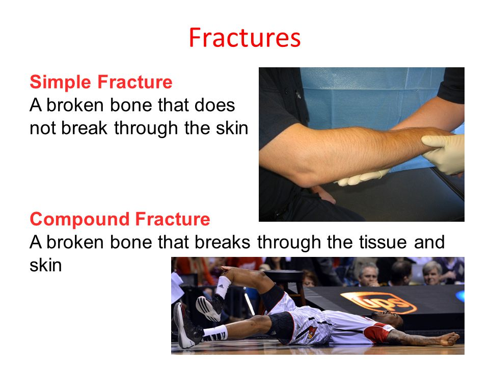 Fractures Simple Fracture A broken bone that does not break through the skin Compound Fracture A broken bone that breaks through the tissue and skin