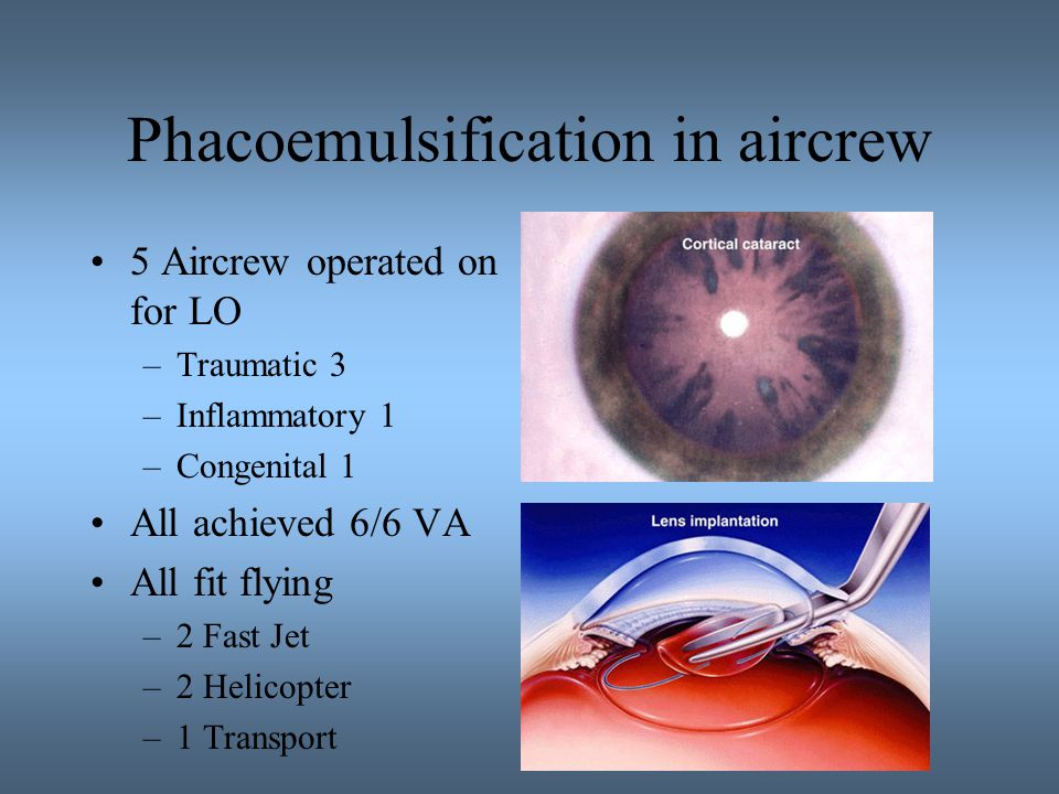 Phacoemulsification in aircrew