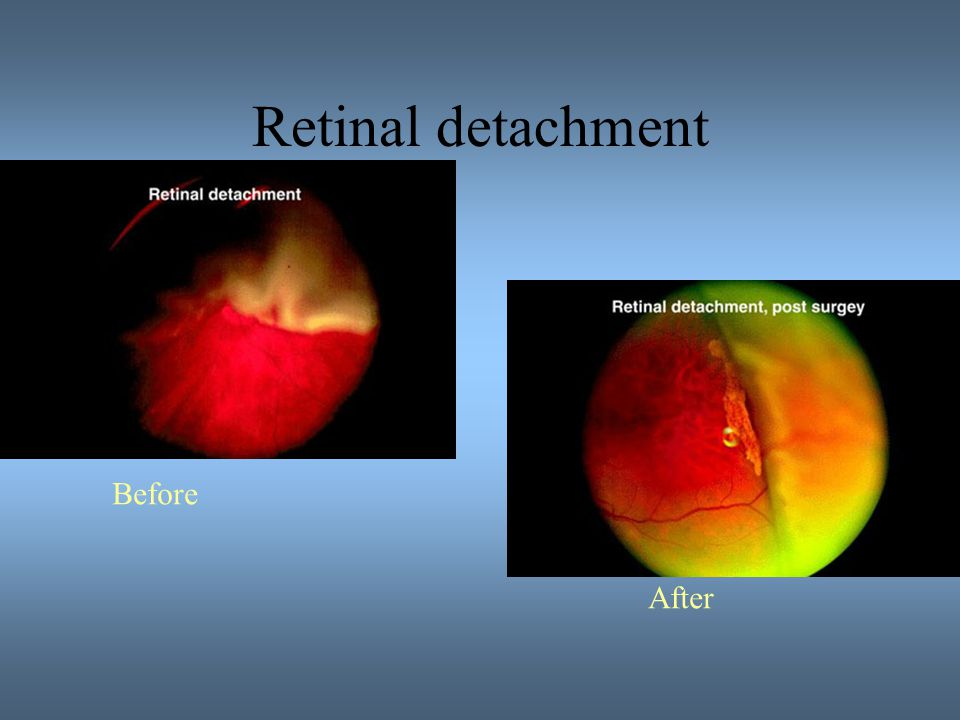 Retinal detachment Before After
