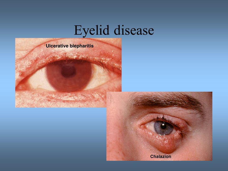 Eyelid disease