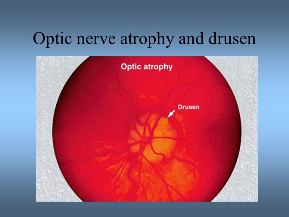 Optic nerve atrophy and drusen