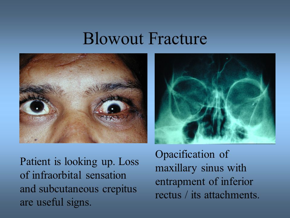 Blowout Fracture Opacification of maxillary sinus with entrapment of inferior rectus / its attachments.