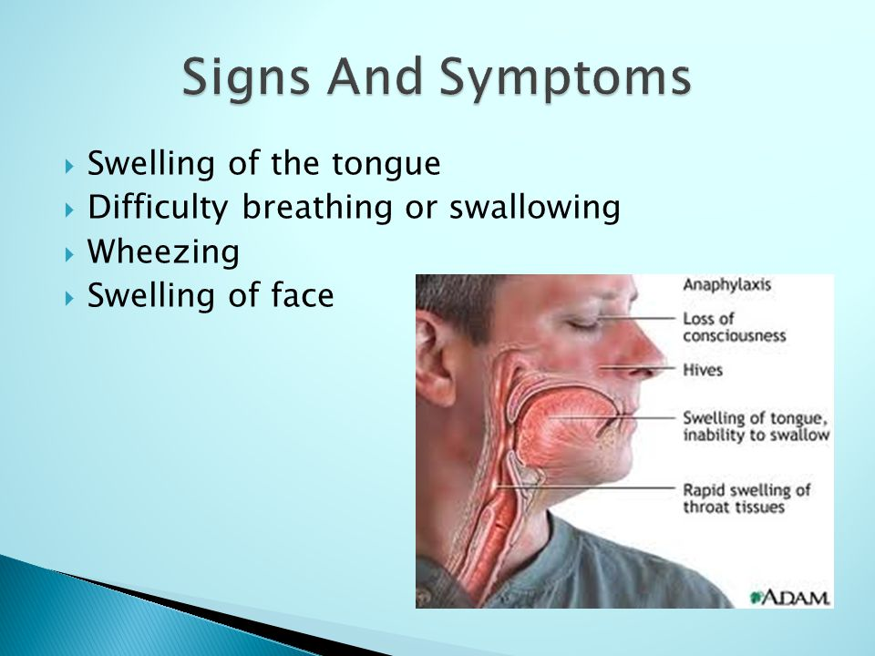Signs And Symptoms Swelling of the tongue
