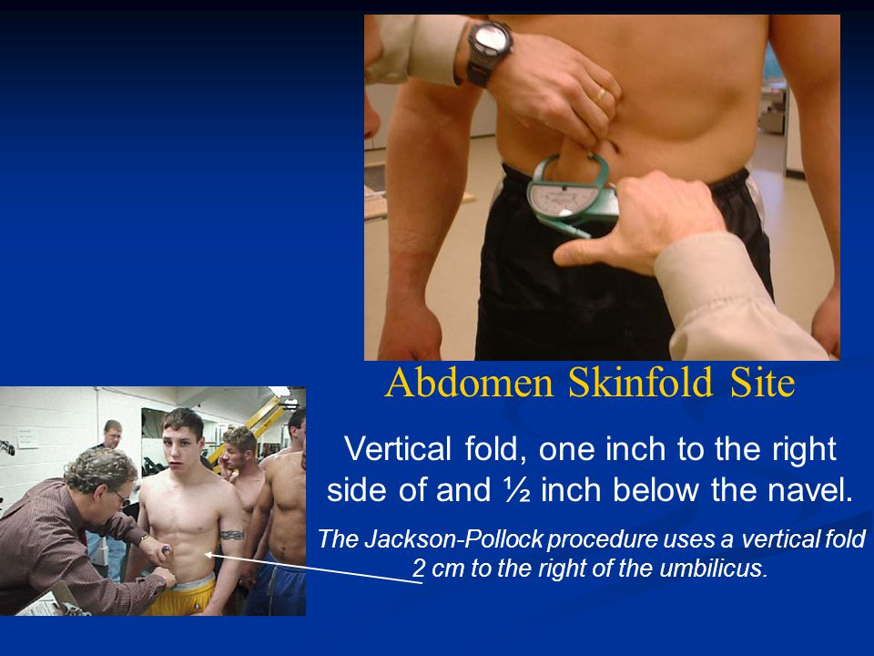 Abdomen Skinfold Site Vertical fold, one inch to the right side of and ½ inch below the navel.