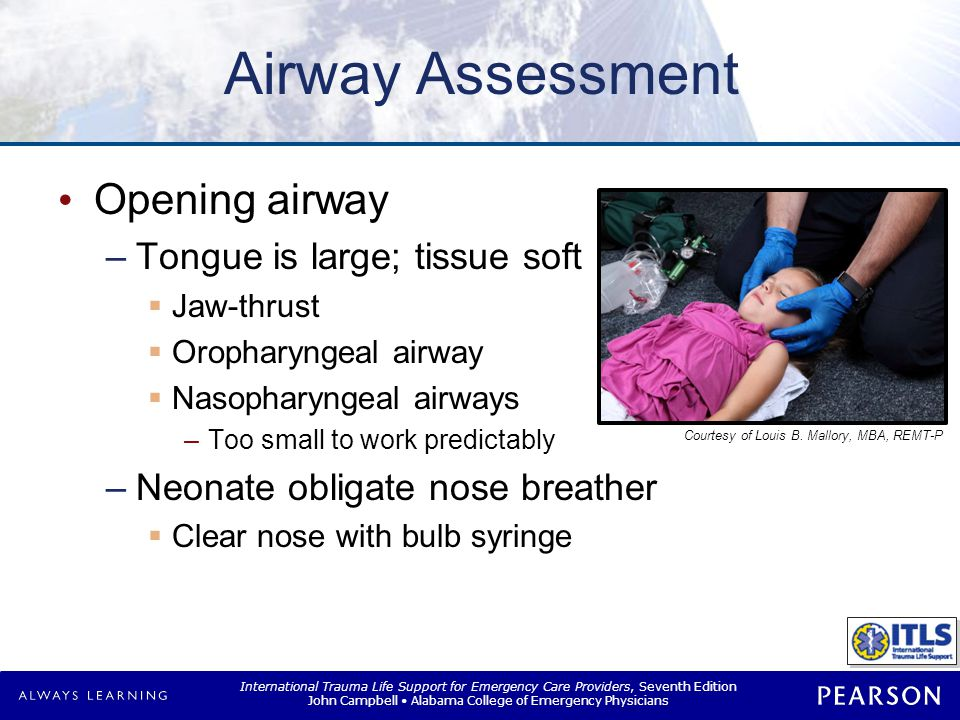 Airway Assessment Signs of obstruction Contribute to obstruction Apnea