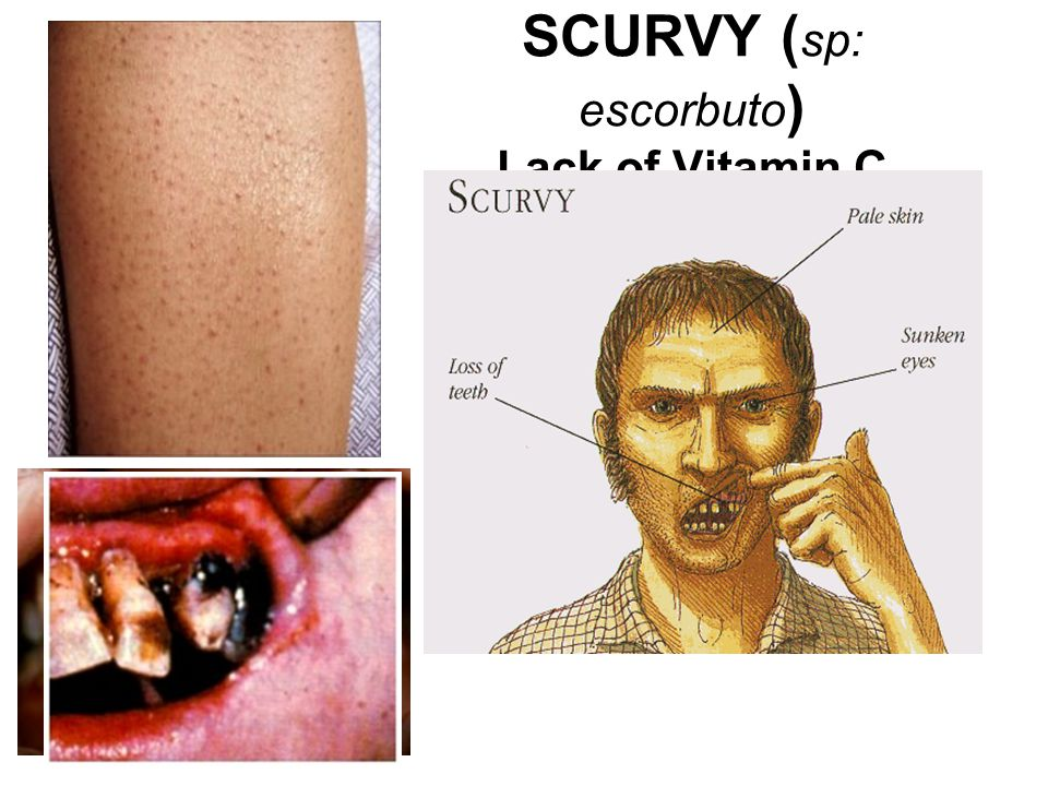 SCURVY (sp: escorbuto) Lack of Vitamin C