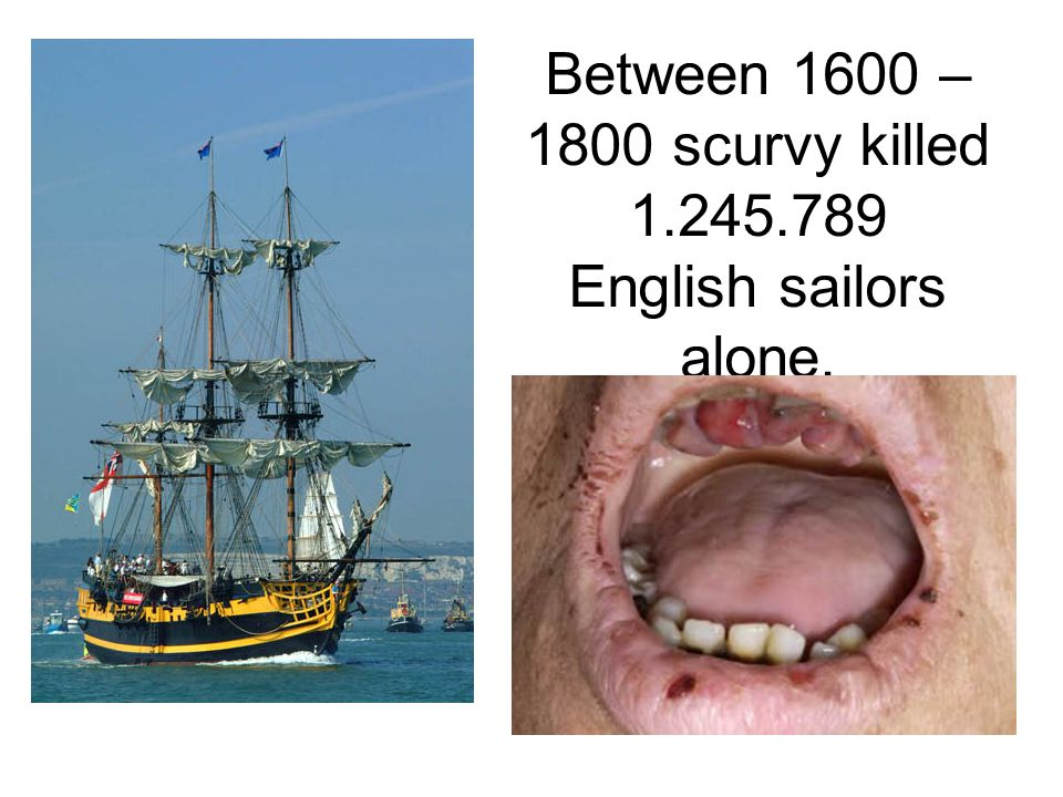 Between 1600 – 1800 scurvy killed 1.245.789 English sailors alone.