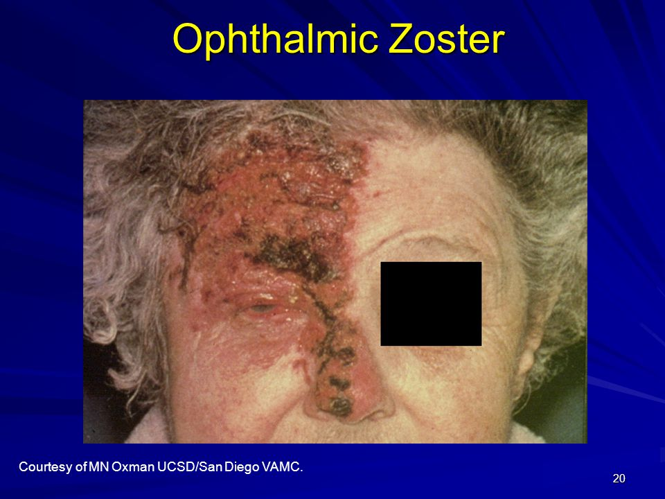 Ophthalmic Zoster Courtesy of MN Oxman UCSD/San Diego VAMC.