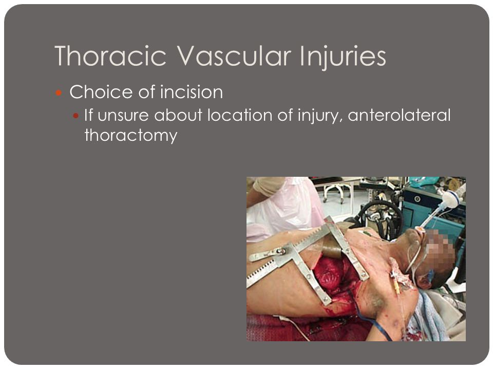 Thoracic Vascular Injuries