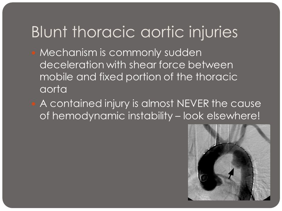 Blunt thoracic aortic injuries